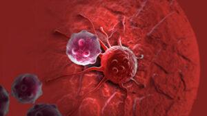 Գիտնականները հայտնաբերել են քաղցկեղը մեկ վայրկյանում ոչնչացնելու արմատական միջոց